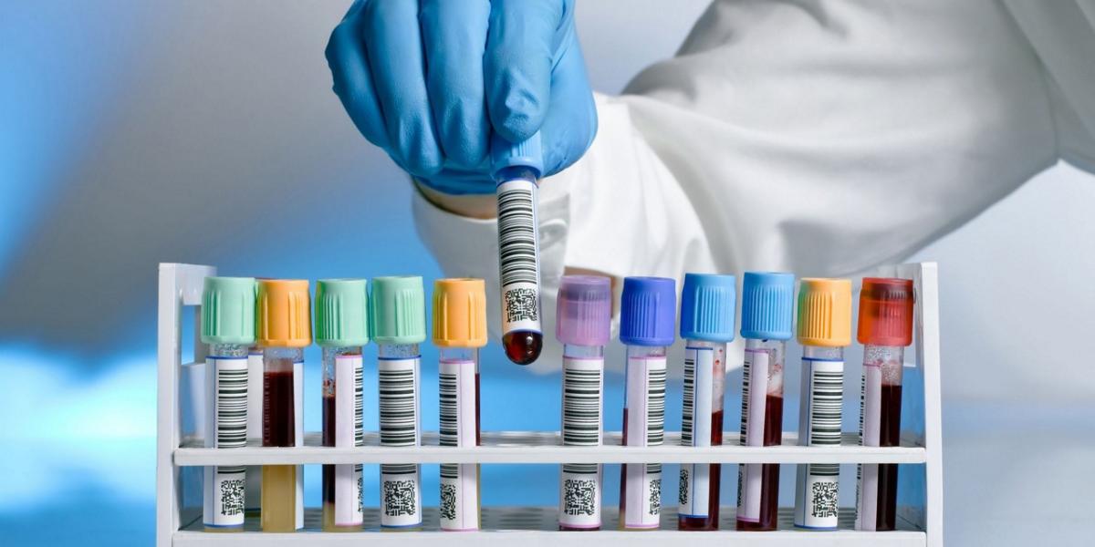 Comment gérer au mieux la gestion des résultats d'analyse dans les laboratoires ?